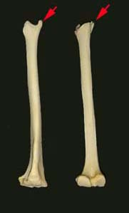 Anterior Margin Of Tibia